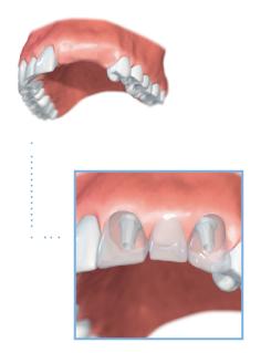 Multiple tooth dental implants illustration