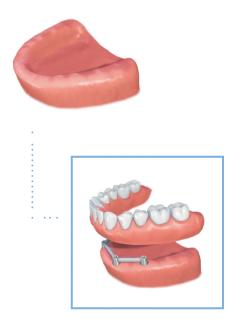 removable denture illustration