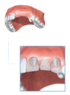 Multiple tooth dental implants illustration