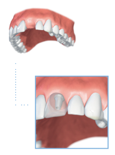 Dental Implant Treatment Options: Single Tooth Implant
